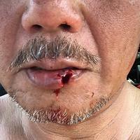 下唇の裂傷 - ぶん屋の抽斗