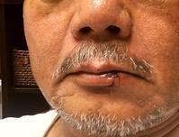 主治医のところへ/唇の腫れも引き - ぶん屋の抽斗