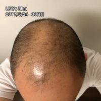 治療開始30日目!【AGAセルフ治療30日目】 - ハゲにつけるクスリはある…?