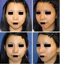 他院鼻プロテーゼ術後入れ替え,鼻孔縁拳上術,鼻尖縮小オープン法,鼻中隔延長術 - 美容外科医のモノローグ