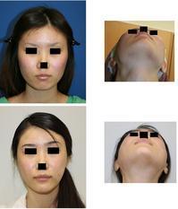 頬骨再構築  術後 8年   & 性転換手術の恩師 Preecha先生 - 美容外科医のモノローグ