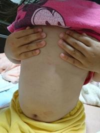 4才の娘に謎の蕁麻疹が現れる - 暮らしの再生