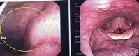 急性咽頭炎・扁桃炎 - 白血球数にこだわっています。