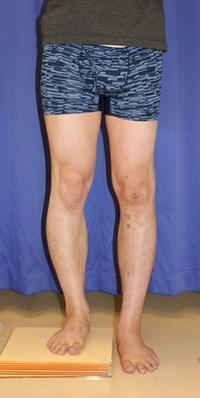 ISKD 左脚5cm 延長達成  右脚術後約1週間 - 美容外科医のモノローグ