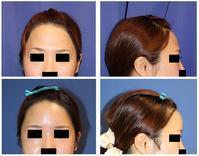 オーダーメイド額プロテーゼ留置術 - 美容外科医のモノローグ