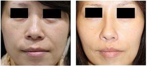 人中短縮術、鼻翼基部プロテーゼ 術後約10か月 - 美容外科医のモノローグ