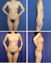 脂肪移植豊胸術 術後約2年2か月再診時 - 美容外科医のモノローグ