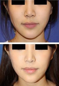 人中短縮術、 口角拳上(内側法) - 美容外科医のモノローグ