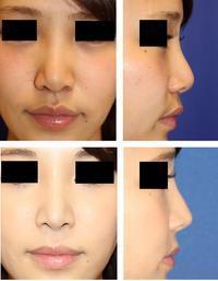 鼻尖部軟骨移植 術後約一年再診時 - 美容外科医のモノローグ