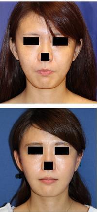 BNLS注射 (頬) 術後約半年 - 美容外科医のモノローグ