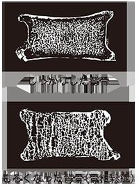 骨粗鬆症 その2 原因 - 横浜市南区弘明寺 原整形外科医院のブログ