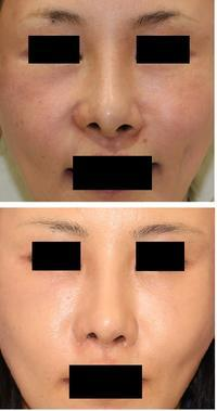 レーザー鼻尖  および 小鼻縮小術 - 美容外科医のモノローグ