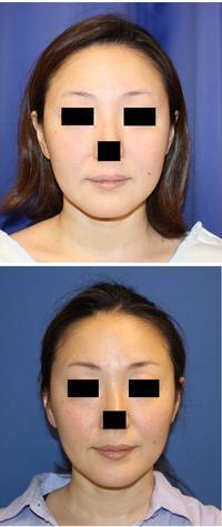 バッカルファット摘出術   術後約半年再診 - 美容外科医のモノローグ