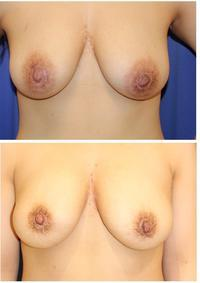 他院 乳輪縮小後 扁平化乳頭 および 傷痕 修正術 - 美容外科医のモノローグ