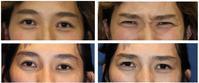 眉間クレヴィエル(ヒアルロン酸), 眉間鼻根部しわ取りボトックス注射 - 美容外科医のモノローグ