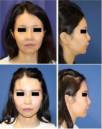鼻尖レーザー、小鼻縮小術、鼻孔縁拳上術、顎下ベイザー+ミントリフト,頬スプリングスレッドリフト - 美容外科医のモノローグ