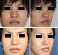 鼻ヒアルロン酸分解注射、プロテーゼ隆鼻術、鼻根縮小術(鼻骨骨切幅寄せ)、小鼻肉厚減幅術 - 美容外科医のモノローグ