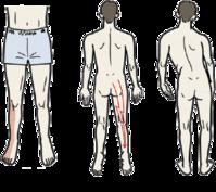 腰椎椎間板ヘルニア その1 症状 - 横浜市南区弘明寺 原整形外科医院のブログ