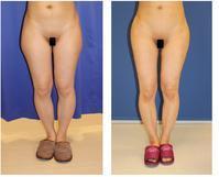 ベイザー 太もも脂肪吸引 - 美容外科医のモノローグ