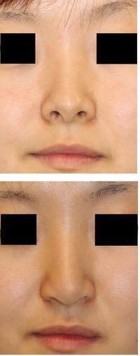 鼻孔縁下降術  「先生 下がり過ぎです」 - 美容外科医のモノローグ
