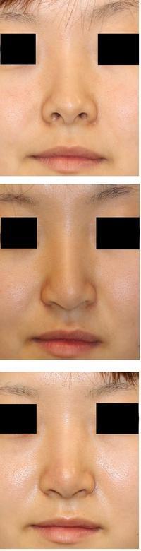 鼻孔縁下降術  「先生 下がり過ぎです」 → 修正術 - 美容外科医のモノローグ