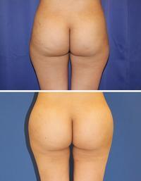 臀部脂肪移植 、  大陰唇脂肪移植 術後3か月 - 美容外科医のモノローグ