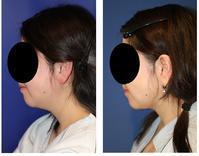 顎下 ベイザー 脂肪吸引 術後約半年 - 美容外科医のモノローグ