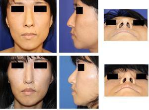 人中短縮術、小鼻縮小術、アップノーズ形成術、鼻尖縮小クローズ法 術後約半年 - 美容外科医のモノローグ