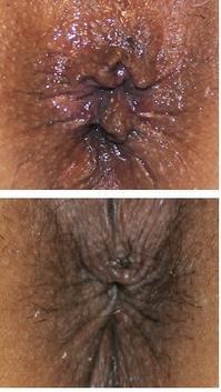 肛門美的形成術 - 美容外科医のモノローグ