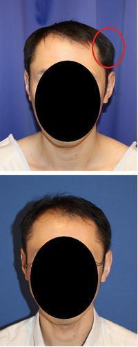 左側頭部 骨削り 術後約半年 - 美容外科医のモノローグ