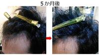 M字ハゲが改善した!?(ちょっと)② - 髪質改善専門サロン SWEET BEACH
