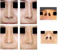 他院鼻尖部軟骨移植術術後  婦人科組織を用いての鼻先修正術術後約6年半 - 美容外科医のモノローグ