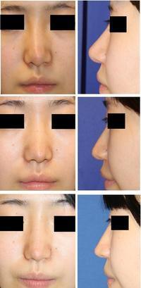 他院術後鼻修正術: 鼻背皮切術、 鼻プロテーゼ抜去、鼻先軟骨移植除去+婦人科軟部組織移植 術後1年半 - 美容外科医のモノローグ