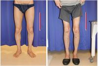 ISKD  下肢延長 5cm  術後半年 - 美容外科医のモノローグ