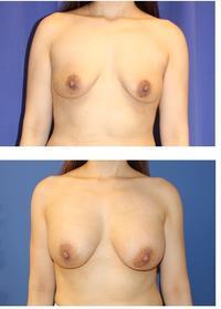 ハイブリッド豊胸 (motiva 豊胸バッグ + 脂肪移植豊胸) 術後約3カ月 - 美容外科医のモノローグ