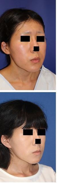 ロアーリフト(SMASリフト) 術後約半年  - 美容外科医のモノローグ