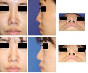 他院鼻プロテーゼ留置術、鼻尖部軟骨移植術 術後修正: 鼻プロテーゼ抜去 、PPP,PRP隆鼻術、鼻先軟骨形態修正、鼻孔形態修正、鼻柱下降術 術後半年 - 美容外科医のモノローグ
