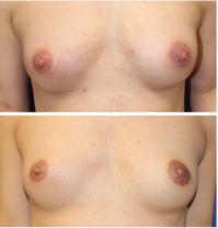 左乳頭縮小術 - 美容外科医のモノローグ