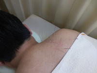 肩甲骨から音がする・日進市の男性 - 日進市のトライ鍼灸接骨院ブログ