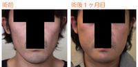 頬骨削り(再構築法)+顎削り(オトガイ骨切り)+バッカルファット術後1ヶ月目 - Dr勝間田のブログ