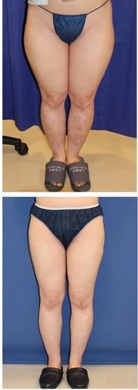 ベイザー太もも、ふくらはぎ脂肪吸引(5000cc) - 美容外科医のモノローグ