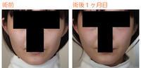 頬骨削り(再構築法)術後1ヶ月目 - Dr勝間田のブログ