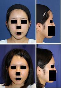 眉間アパタイト - 美容外科医のモノローグ