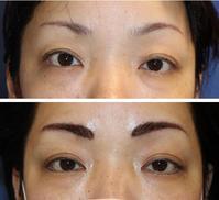 他院眉アートメイク修正術 - 美容外科医のモノローグ