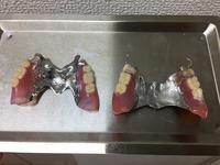 入れ歯を新しく - メグデンブログ