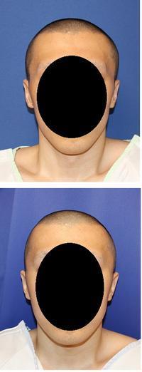 側頭部頭蓋削り、他院後頭部アパタイト術後修正 術後6か月 - 美容外科医のモノローグ