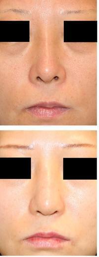 鼻孔縁延長(下降)術術後半年 - 美容外科医のモノローグ