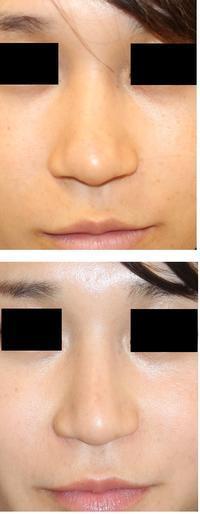 レーザー鼻尖、小鼻縮小術後半年検診 - 美容外科医のモノローグ