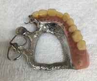 義歯新製(今までと同じ形で) - メグデンブログ