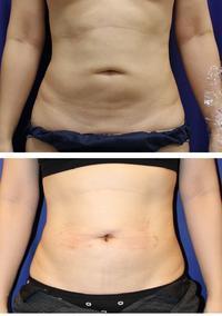 他院ヘソ形成術後修正術縦長ヘソ形成術 - 美容外科医のモノローグ
